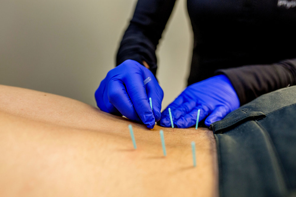 Integrative-Dry-Needling